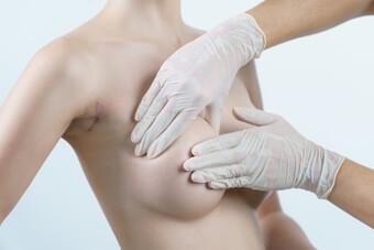 Φωτογραφία από ανόρθωση στήθους